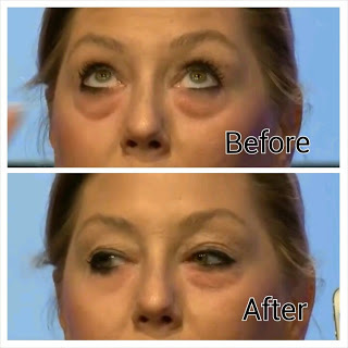 instantly ageless review 2015